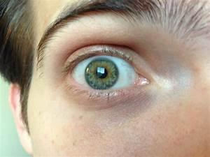 Central Heterochromia Hazel | www.imgkid.com - The Image ...