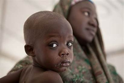 Nigerian Babies Abandoned State Lagos Born Half