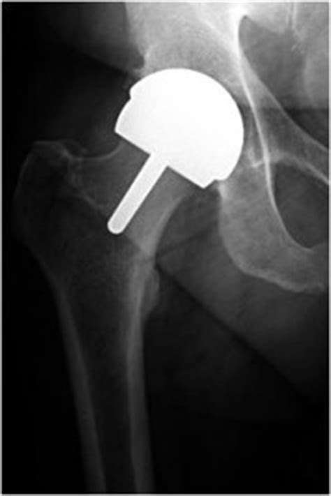 Recent Concerns With Hip Resurfacing  Andrew Manktelow. How To Make A Dot Plot Cost Margin Calculator. Lincoln City Culinary Center. How Much Is Laser Vision Correction. Lawn Mower Repair Gilbert Az. Postcard Printing Online Humana Louisville Ky. Best Voip Telephone Service Edl Garage Doors. Neonatal Nurse Education Pj Plumbing Dover Nj. Medical Coding Online Schools Accredited