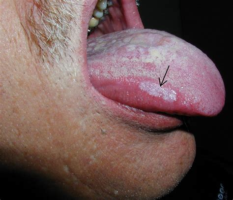 Health Teller White Spots On Mouth Mucosa