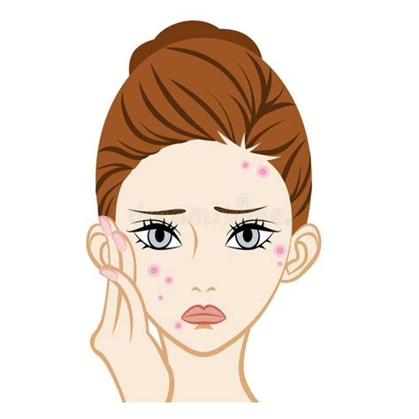 best treatment for pimples what is the best treatment for pimples and acne quora