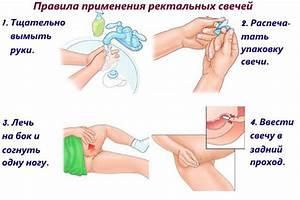 Лечение простатита анонимно