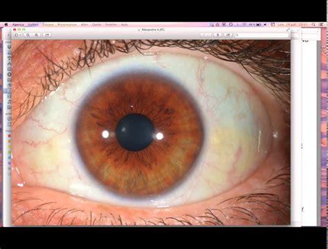 decouvrons  iridologie  wwwregenereorg youtube
