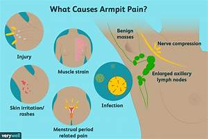 Armpit Pain  Causes  Treatment  When To See A Doctor