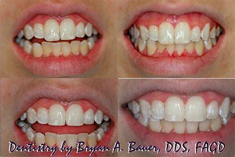 enameloplasty code  enameloplasty cost bauer smiles