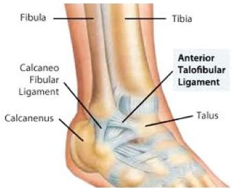 Ankle Ligament Reconstruction | Cal Sports & Orthopaedic ...