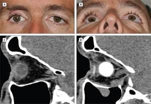 safe repair of orbital floor fractures oculoplastic surgery jama plastic surgery