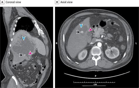 acute calculous cholecystitis  intrahepatic