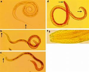Haemonchus Contortus Larvae Illustrating The Morphological