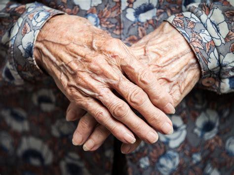 altershaut trockene haut altersflecekn und falten hautinfo