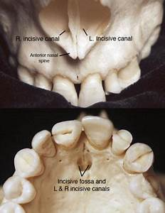 Incisive Canal