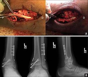 Acute Tibialis Posterior Tendon Rupture With Pronation