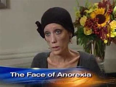 anorexias living face cbs news youtube