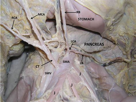 Anomalous Origin And Vulnerable Course Of Left Colic