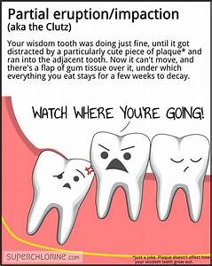 2nd one for me ... Tooth Extraction Quotes