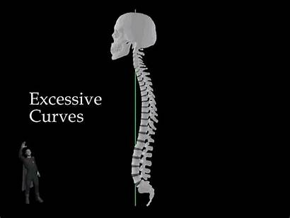 Spine Ray Spinal Animated Curvature Rays Degenerative