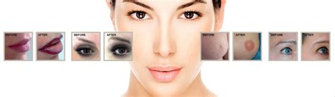 Look Great With Semi Permanent Makeup Treatments. How Long Does It Take To Get A Associates Degree. Free Adobe Reader For Android. Overhead Garage Door Colorado Springs. Fountain Valley Locksmith Wsj Wine Offer Code. Is Psychology A Behavioral Science. Charleston Accident Attorney I Robot Games. How To Consolidate Debt Dupage Divorce Lawyer. State Of Colorado Business License