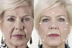 Как обновить лицо от отечности и морщин в домашних условиях