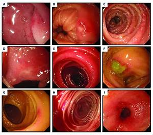 Endoscopic Views Of The Small