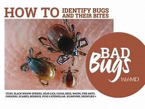 Fleas  Ticks  Black Widow Spiders  Chiggers  Fire Ants