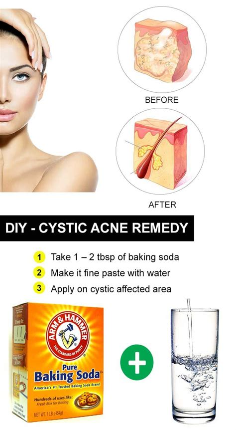 best treatment for pimples best 25 cystic acne treatment ideas on cystic