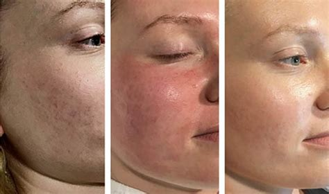 portland tattoo removal skin care hair loss injectables