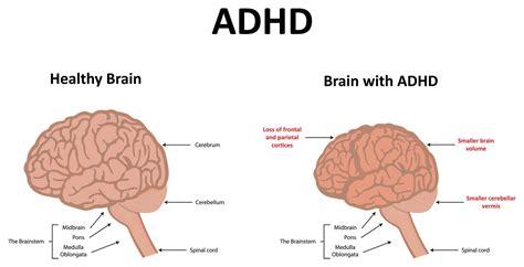 Diagram Of Adhd by Image Result For Adhd Brain Adhd Add Adhd Brain