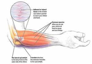 Elbow pain. Causes, symptoms, treatment Elbow pain Elbow Injuries and Disorders