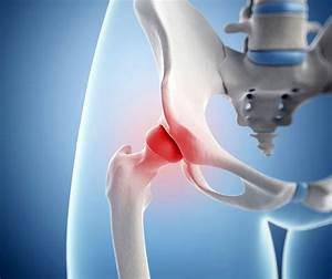 Лечение остеохондроза реферат