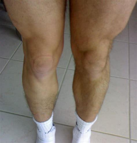 douleur au genou gauche interieur r 233 tablissement apr 233 s rupture du ligament crois 233 ant 233 rieur accidents sportifs forum sant 233