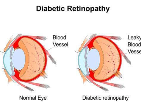 Biochemistry Diabetes Mellitus