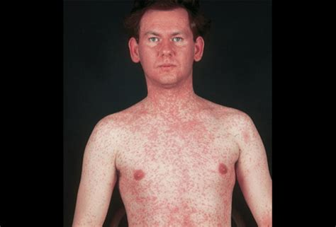 Measles Images Picture Of Measles