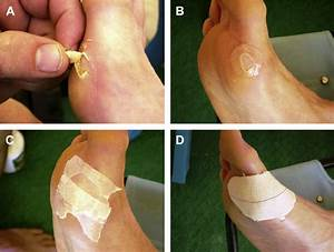 A   Open Blister At The Metatarsal Region    B