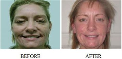 led light therapy before and after the secret led light therapy device wrinkles anti