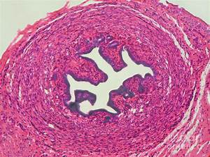 Lm Of Fallopian Tube Photograph By Garry Delong