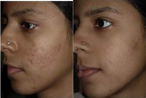 Dermal fillers for acne scars before and after pictures