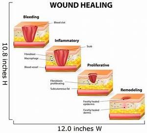 Wound Healing Diagram Wall Mural  U2013 Wallmonkeys Com