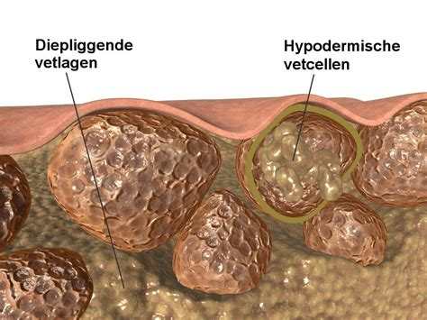 apparaat cellulitis