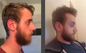 22 Years Old Full Beard Before And After Beard Board