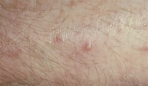 hot tub after breast biopsy hot tub folliculitis pseudomonas folliculitis hot tub