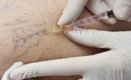 Какую противогрибковую мазь можно при беременности