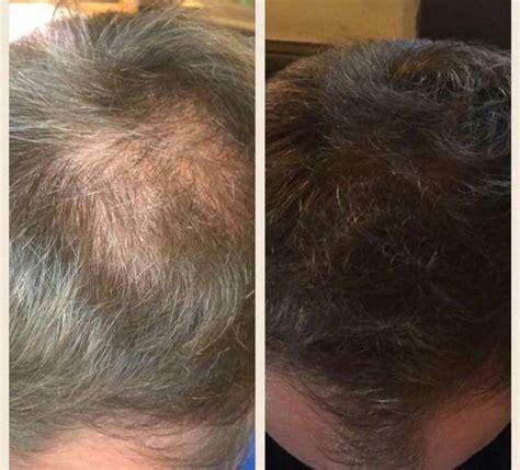 For Hair by Nutriol Shoo Amazing For Hair Loss Nuskin