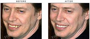 Steve Buscemi's snaggle tooth correction! View 'before ...