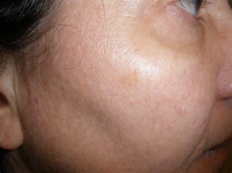 Soy Milk Cystic Acne