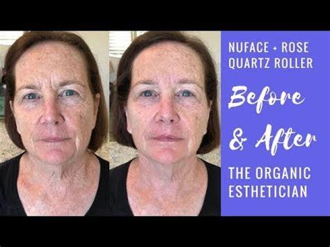 Anti-Aging NuFace Microcurrent + Rose Quartz Roller Before