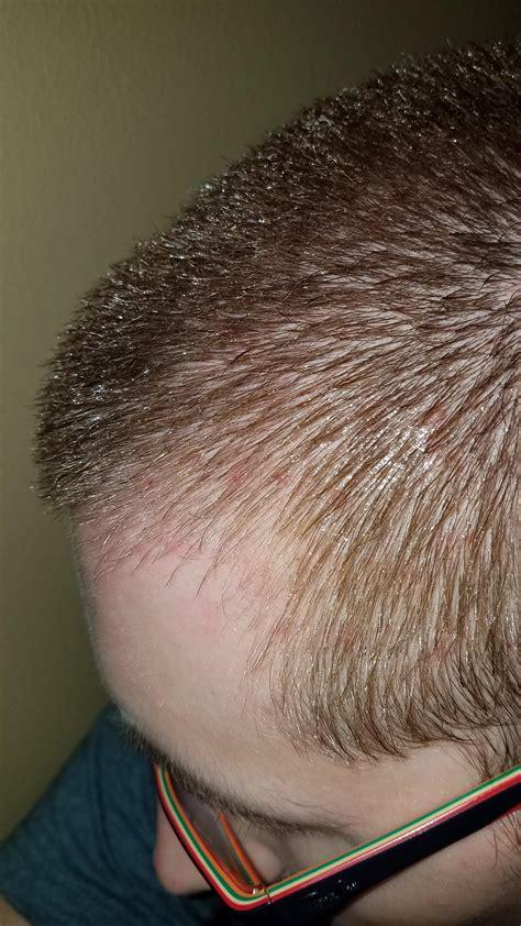 Scalp Acne/Folliculitis (Pictures) - General acne
