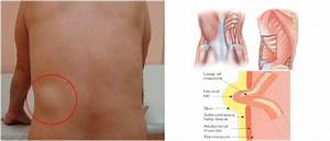 Lumbar Hernia  Causes  Symptoms  Diagnosis  And Treatment