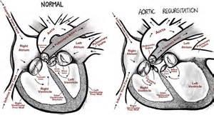 Aortic Regurgitation  Aortic Regurgitation