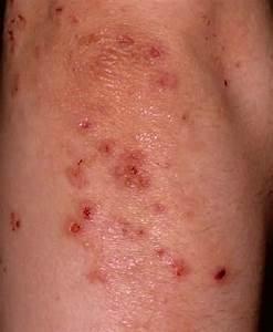 Dermatitis Herpetiformis - Pictures, Symptoms, Causes ...