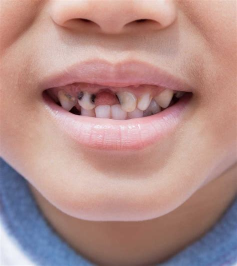 child tooth decay pictures   treatment options